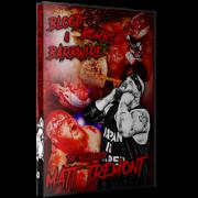 "Best Of Matt Tremont DVD ""Blood, Bombs, Barbwire"""